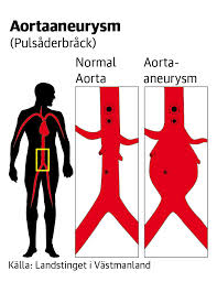 aortaaneurysm